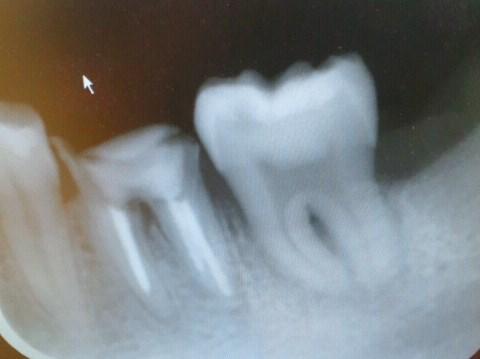 歯の移植術後