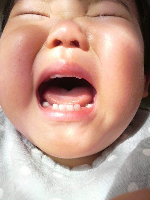 1歳6か月の口の中