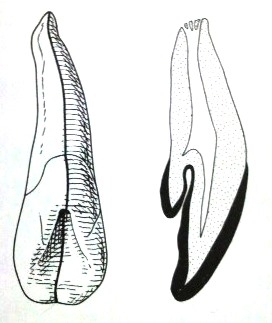 盲孔の断面図