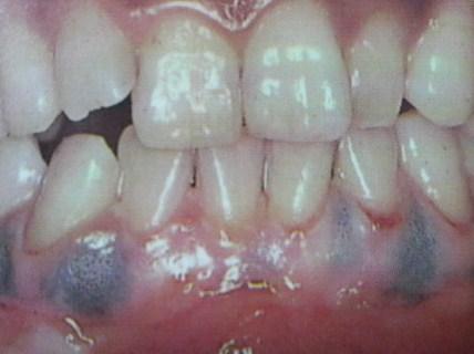 歯肉の変色