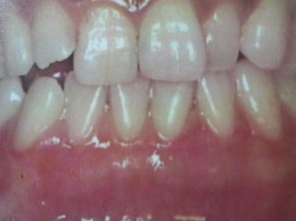 歯肉の変色治療後