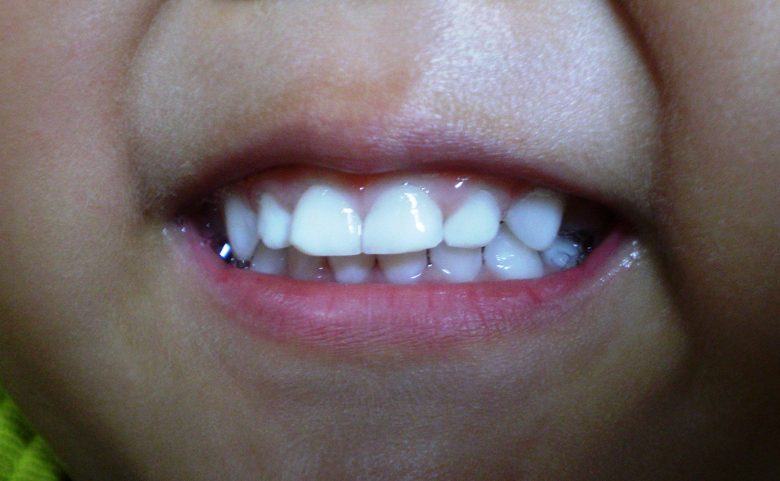 3歳児の歯磨き後
