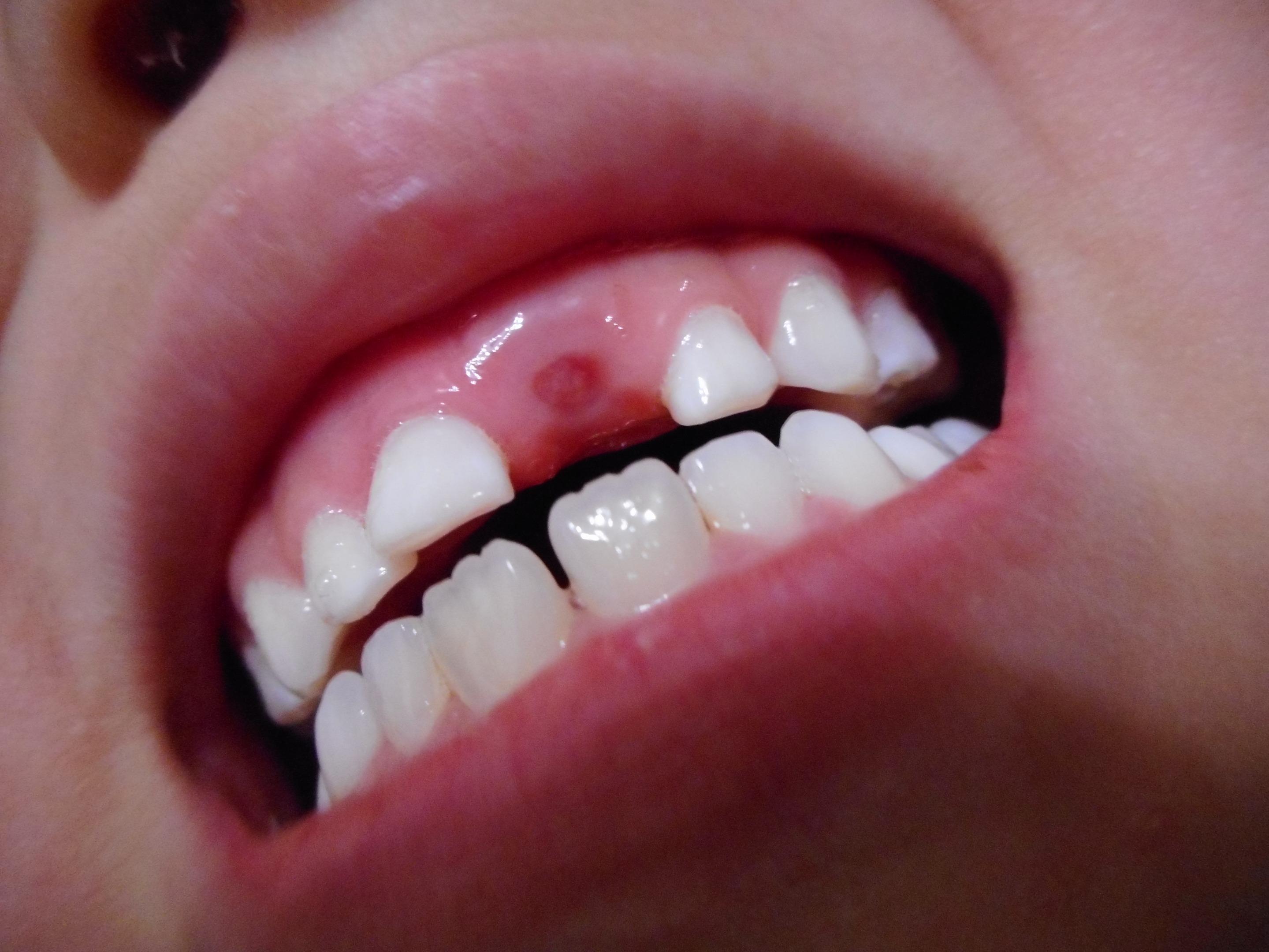 6歳歯抜け