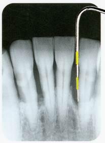 歯周ポケット診査X線